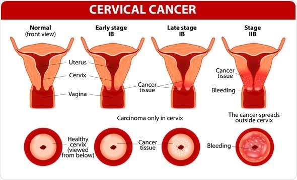 How to avoid cervical cancer