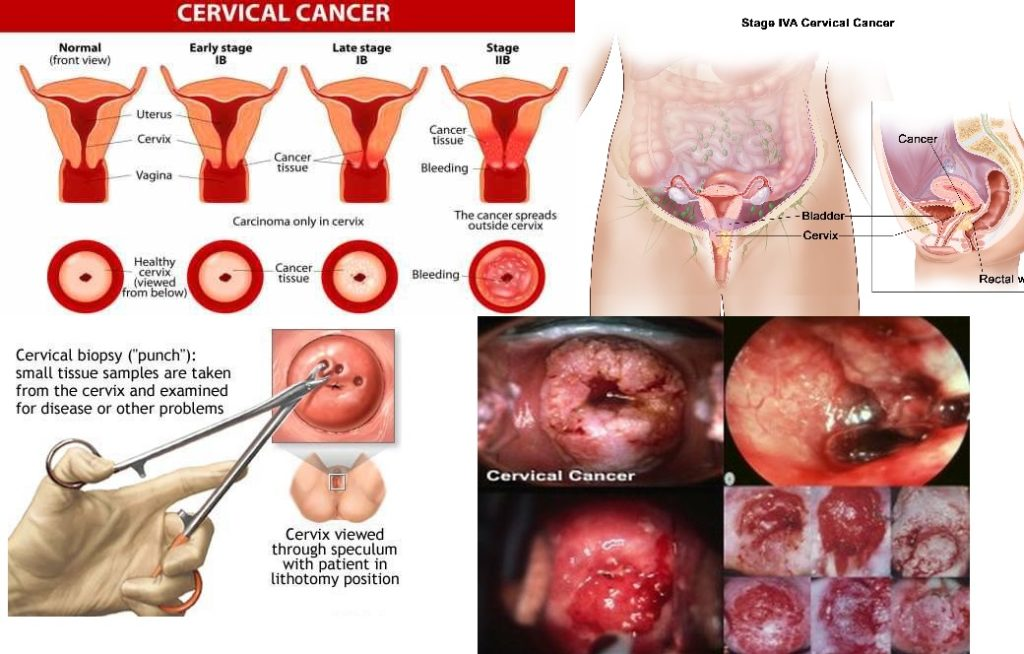 Cervical cancer jabs drive